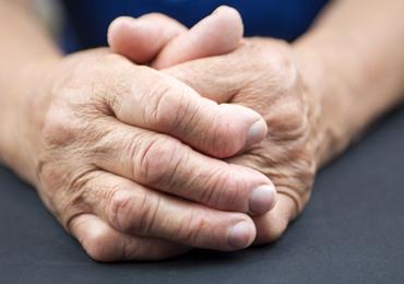 Artrite Reumatóide : Tratamento e o uso de Órteses