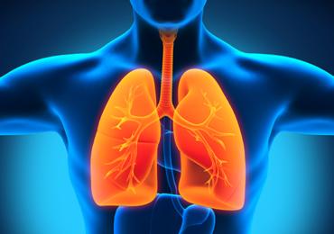Pneumonia associada à ventilação mecânica (PAVM): aspectos gerais