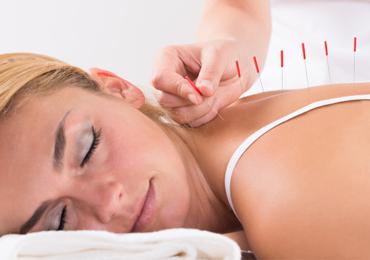 Acupuntura, uma terapia alternativa no tratamento da Fibromialgia
