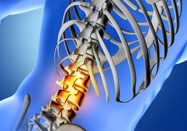 Estudo epidemiológico sobre os fatores de risco das algias de coluna vertebral