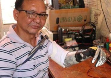 A incrível história do amputado por choque que construiu braço com sucata