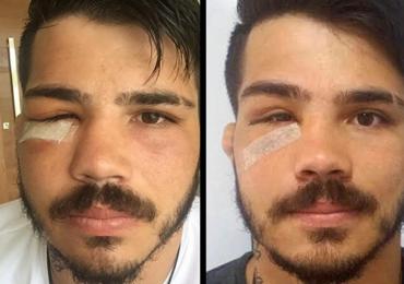 Fisioterapeuta explica recuperação de Erick Silva após fratura na face