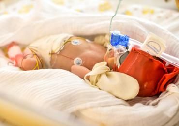 Uso do CPAP Nasal na Sala de Parto em Prematuros