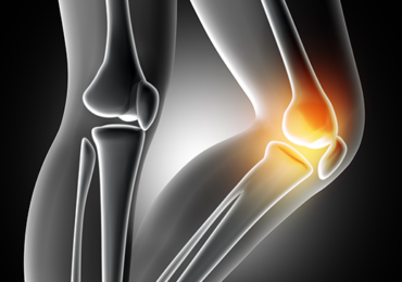 Estudo da Eficácia da Laserterapia de Baixa Potência no Tratamento da Osteoartrite de Joelho: Estudo Clínico Controlado