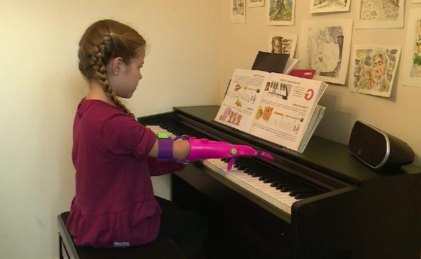 Dupla transforma a vida de crianças doando próteses 3D