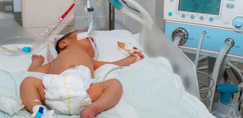 Intervenção Fisioterapêutica Precoce no Desenvolvimento Motor de Recém-nascido de Risco