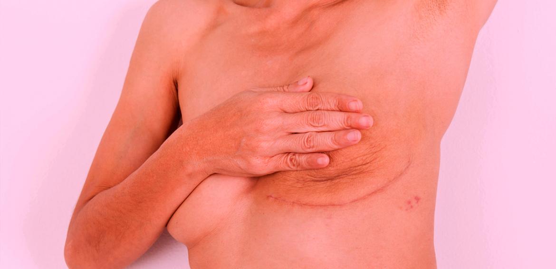 Tratamento do Linfedema no Pós-Operatório de Mastectomizadas – Uma Revisão de Literatura