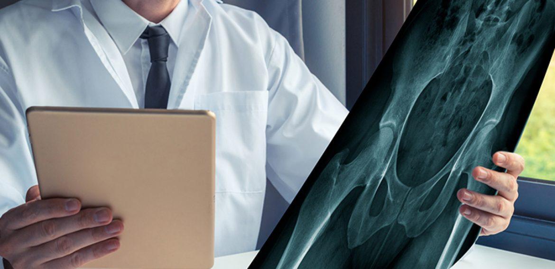 Artroplastia no Quadril Vida e Qualidade