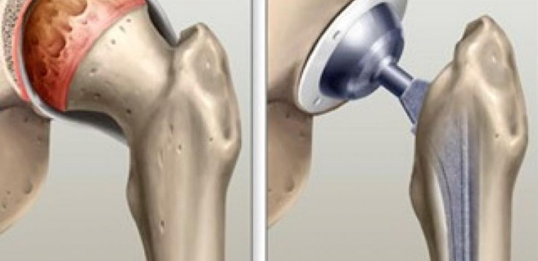 A Importância dos Exercícios na Artroplastia Total de Quadril