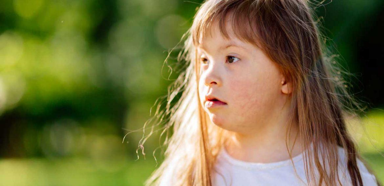Cuidados na Atresia de Esôfago de Indivíduo com Síndrome de Down – Relato de Caso