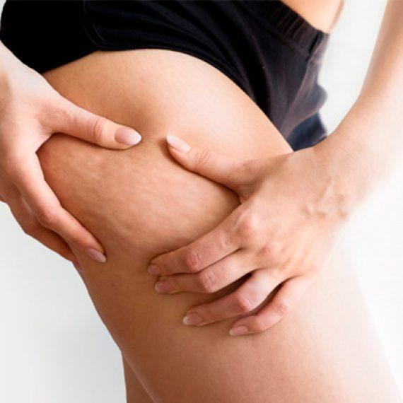 A Eficácia da Carboxiterapia no Tratamento do Fibro Edema Gelóide
