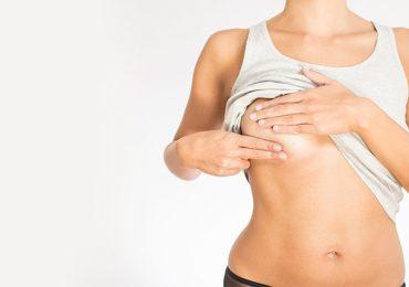 A Importância da Fisioterapia no Linfedema Pós Cirurgia de Câncer de Mama
