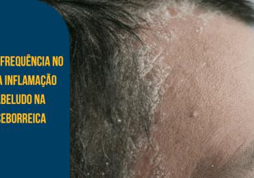 Uso da alta frequência no controle da inflamação no couro cabeludo na dermatite seborreica