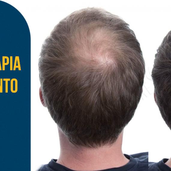Carboxiterapia no Tratamento da Alopecia
